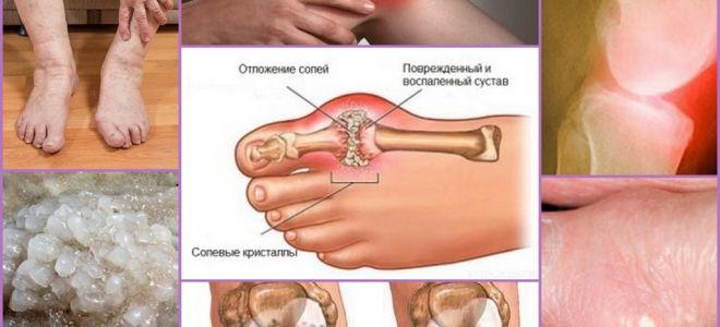 Альфа артроферол снимает воспаление в суставах